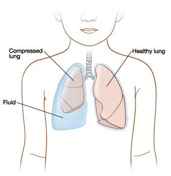 Front view of child showing fluid trapped between compressed lung and body wall on right side. Healthy lung on left.