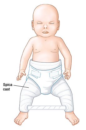 Baby with spica cast on lower body and legs. Bar connects cast at lower legs.