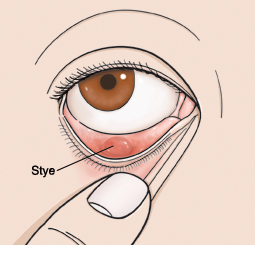 Closeup of eye with finger holding down lower eyelid to show stye.