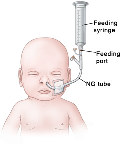 Outline of baby's head and chest showing NG tube in nose connected to feeding port and feeding syringe.
