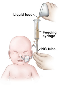 Outline of baby's head and chest showing NG tube in nose connected to feeding port and feeding syringe. Hand is holding NG tube steady while other hand pours liquid food into feeding syringe.