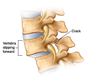 Side view of vertebrae with spondylolisthesis  showing vertebra slipping forward and causing crack at back of one vertebra.