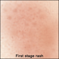 Closeup of skin showing first stage rash. Rash is in large patch.