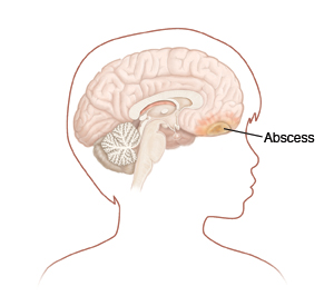 Outline of child's head turned to side showing head and brain. Abscess is in front part of brain.