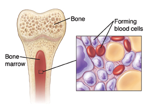 Cross-section of bone showing marrow and inset of blood components in marrow.