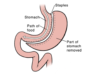 Front view of stomach and first part of small intestine. Stomach has been cut to form small pouch at top. Rest of stomach is removed. Staples close off cut edges. Arrow shows path of food from small pouch to small intestine.