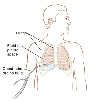 Outline of man showing fluid trapped between collapsed lung and body wall on right side. Normal lung on left. Tube inserted into chest between ribs on right is removing trapped fluid.
