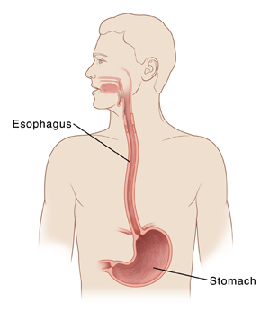 Outline of human head and chest with head turned to side. Cross section of esophagus leading from mouth to stomach is shown.