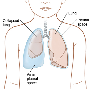 Outline of child showing lungs in chest. Left lung is normal and surrounded by thin pleural space. Right lung is collapsed and air is filling pleural space.