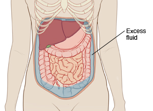 Outline of woman's abdomen showing abdominal organs. Fluid is filling abdomen around organs.