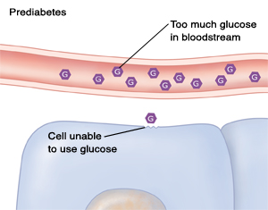 Cross section of blood vessel and cells showing too much glucose in blood because of prediabetes.