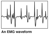 An EMG waveform