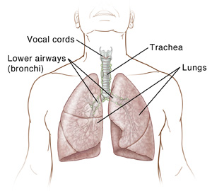 Front view of a male torso showing the vocal cords, larynx, lymph nodes; trachea; bronchi, and lungs..