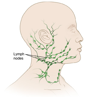Side view of the neck and head showing the lymph nodes.