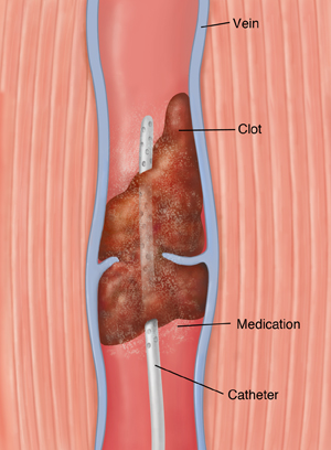 Cross section of vein with blood clot showing catheter releasing medicine into clot.
