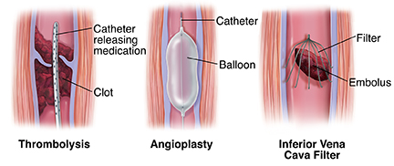Three ways to treat venous thrombosis: catheter delivering medication, balloon angioplasty, embolus filter.