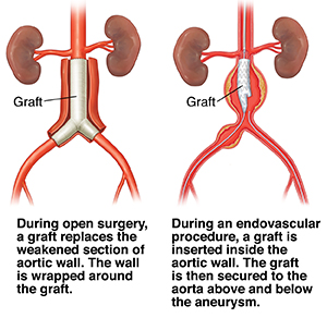 Open surgery to place graft for abdominal aortic aneurysm. Endovascular procedure to place graft for abdominal aortic aneurysm.