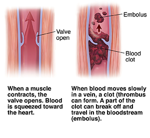 Cross section of muscle and vein showing open valve with arrow showing blood moving up. Cross section of varicose vein with thrombus and emboli.