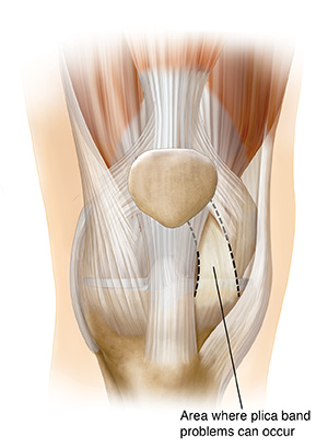 Front view of knee joint showing plica band.