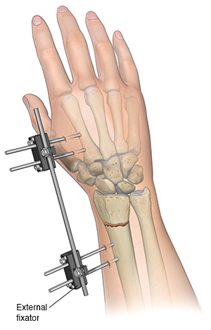 Front view of forearm with a plate holding fracture of the radius together.