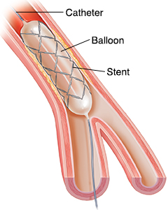 Cross section of artery showing balloon catheter placing stent.
