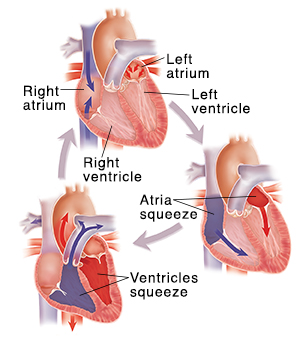 Diagram of three cross-sectioned hearts showing blood flow during heartbeats.