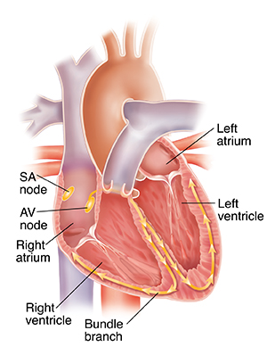 Cross section of heart showing conduction system, left atrium, left ventricle, bundle branches, right atrium, right ventricle, SA node and AV node.