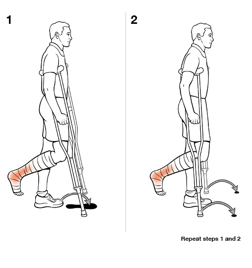 2 steps in using crutches with swing to (non-weight bearing)