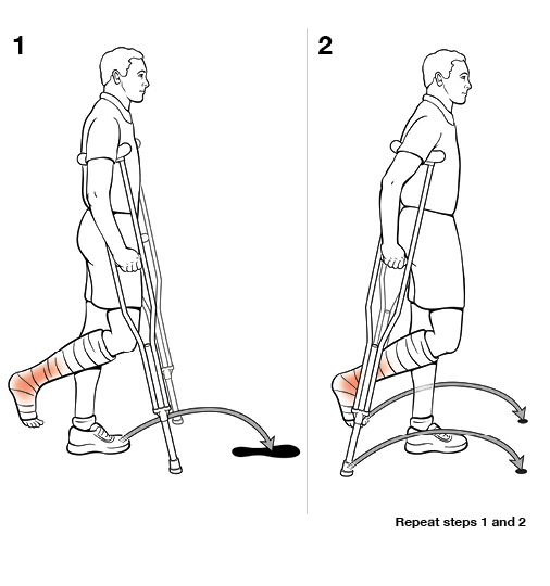2 steps in using crutches with swing through (non-weight bearing)