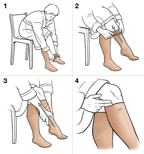 4 steps in putting on knee-high compression stockings