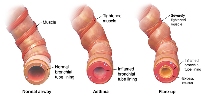Normal bronchiole, a tightened bronchiole with asthma, and constricted bronchiole with excess mucus during asthma flareup.