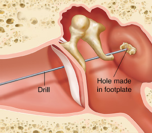 Cross section of ear showing outer, inner, and middle ear structures showing drill making hole in stapes footplate.