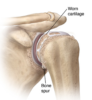 Front view of shoulder joint with arthritis.