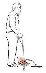 Side view of a man using a cane. The arrow shows where he should put his other foot.
