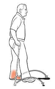 Side view of man using a cane. The arrows show where he should put his injured foot and cane to step past his other foot.