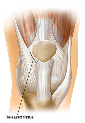 Front view of knee joint showing showing lateral retinacular release.
