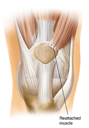 Front view of knee joint showing quad muscle transfer.