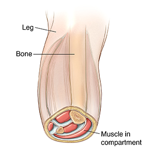Front view of leg with lower section cut off. Cut surface of leg shows muscles in compartments.