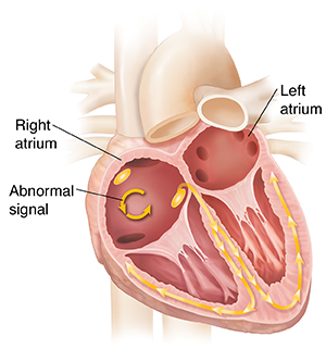 Cross section of heart showing atrial flutter.