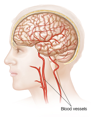 Side view of head, brain, and blood vessels to the brain.