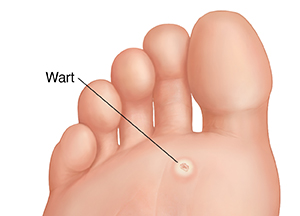 Sole of foot showing plantar wart.