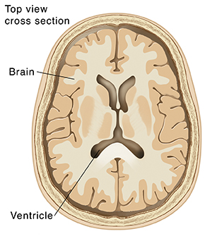 Top view cross section of brain showing ventricles.