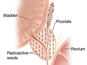 Cross section of a prostate showing radioactive seeds for interstitial brachytherapy.
