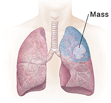 Front view of chest showing lungs. Shaded area shows segment resection.