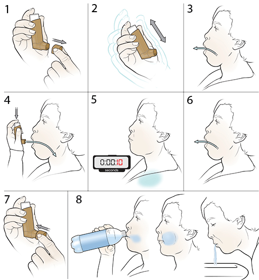 8 steps in using a steroid inhaler.