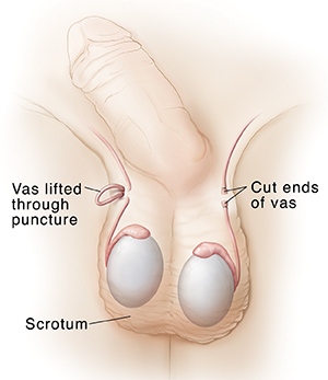 Front view of penis and scrotum showing vas deferens during and after vasectomy.