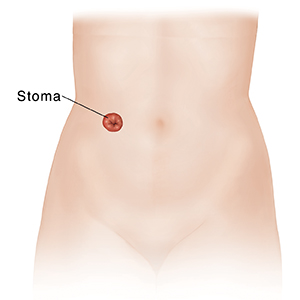 Front view of female torso and pelvis showing urinary stoma.