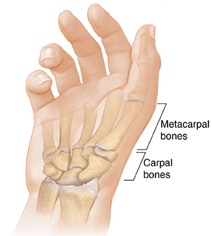 Palm view of hand showing carpals and metacarpals.
