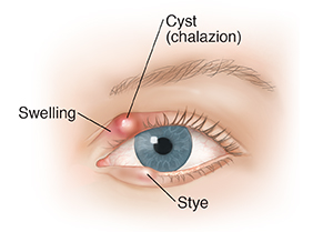 Front view of eye showing blepharitis.