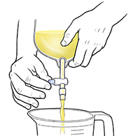 Closeup of hands opening valve on urinary catheter bag, draining urine into measuring cup.